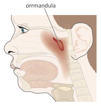anatómiai kép: orrmandula duzzanata